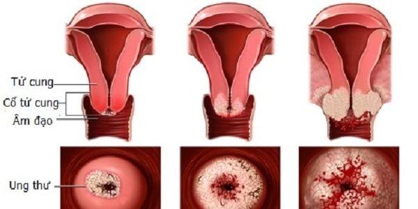 Bệnh viêm phụ khoa ở phụ nữ