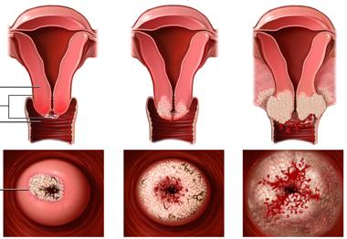 Viêm cổ tử cung là bệnh gì?