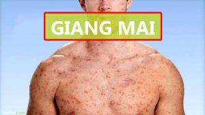 Nhận biết bệnh giang mai ở nam giới