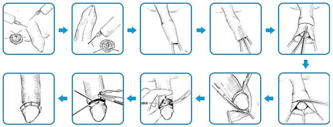 Quá trình cắt bao quy đầu