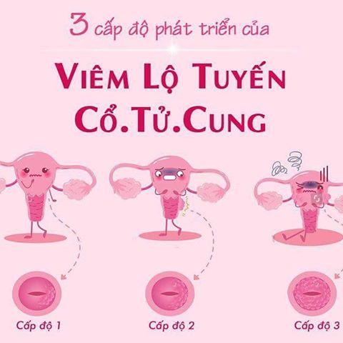 Viêm lộ tuyến độ cổ tử cung độ 3