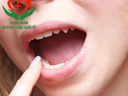 triệu chứng sùi mào gà ở lưỡi
